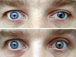 Prostetik  Lens